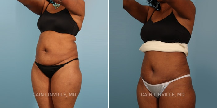 Mini Abdominoplasty Before And After Patient 2B