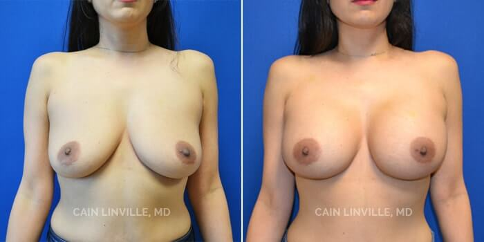 Breast Augmentation Before And After Patient 19A