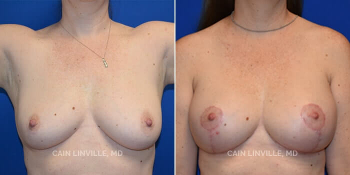 Breast Lift Before And After Patient 1A
