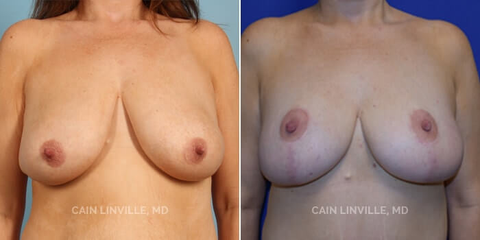 Breast Reduction Before And After Patient 1A