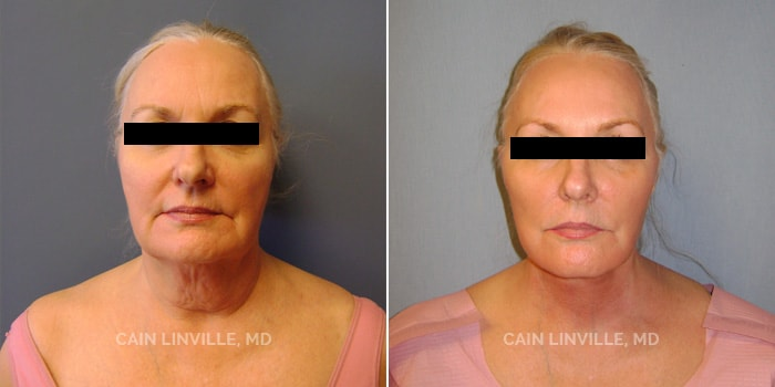 Face and Neck lift Before And After Patient 1A