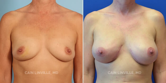 Breast Reconstruction Before And After Patient 1A