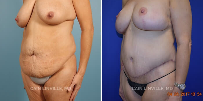 Lipo Tummy Tuck Before And After Patient 1A