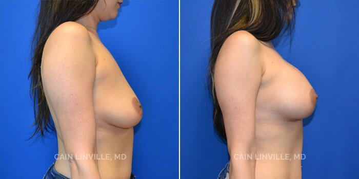 Breast Augmentation Before And After Patient 19B