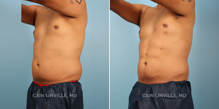 Lipo Etching Before And After Patient 1B