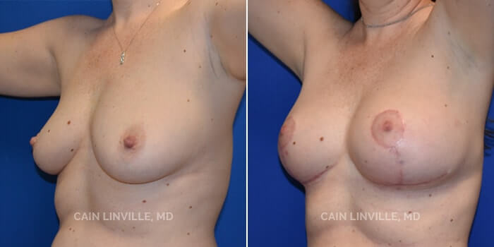 Breast Lift Before And After Patient 1B