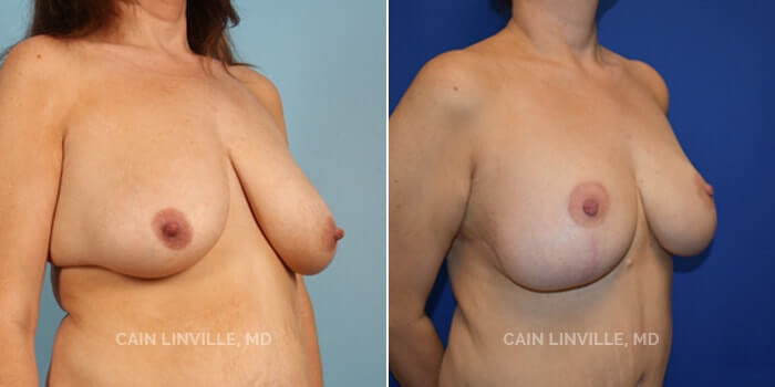 Breast Reduction Before And After Patient 1B