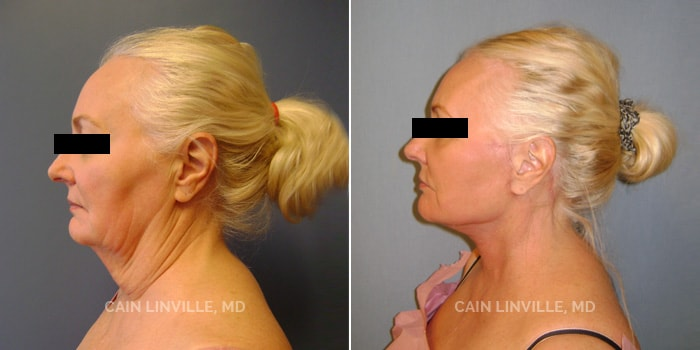 Face and Neck lift Before And After Patient 1B