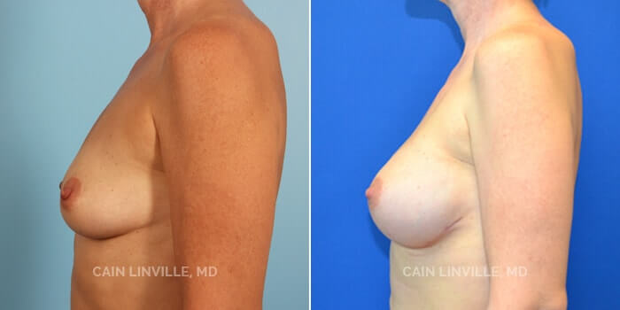 Breast Reconstruction Before And After Patient 1B
