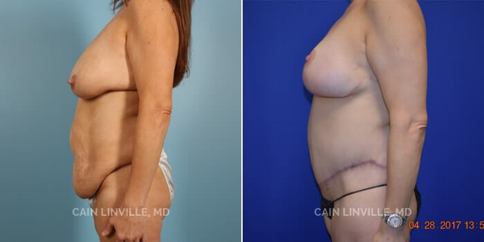 Lipo Tummy Tuck Before And After Patient 1B