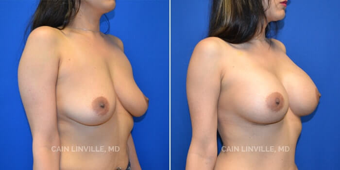 Breast Augmentation Before And After Patient 19C