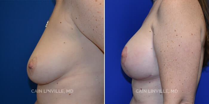 Breast Lift Before And After Patient 1C