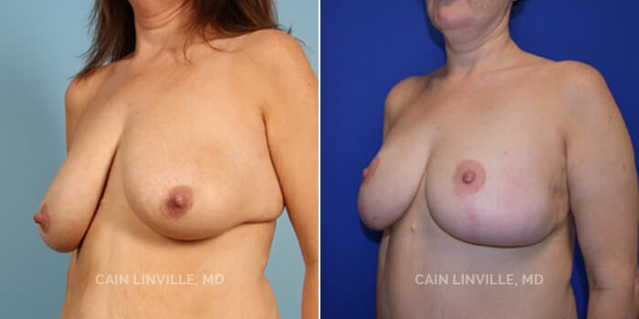 Breast Reduction Before And After Patient 1C