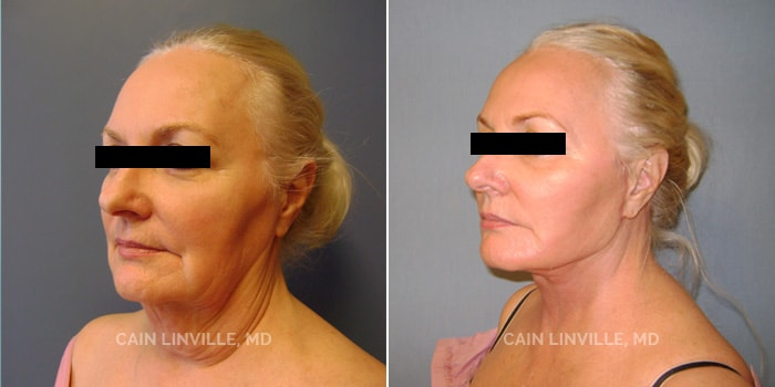 Face and Neck lift Before And After Patient 1C