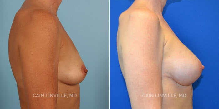 Breast Reconstruction Before And After Patient 1C