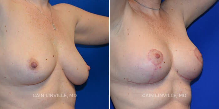 Breast Lift Before And After Patient 1E