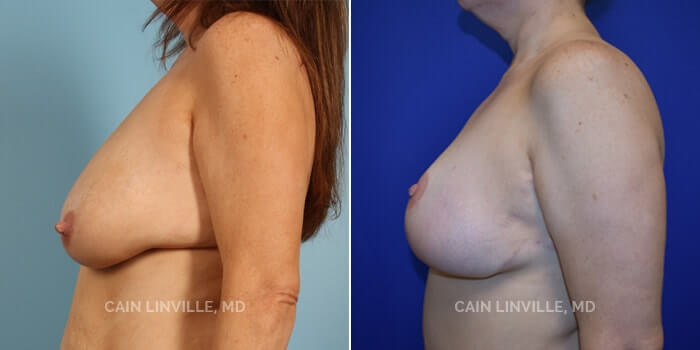 Breast Reduction Before And After Patient 1D