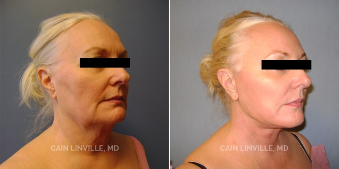 Face and Neck lift Before And After Patient 1D