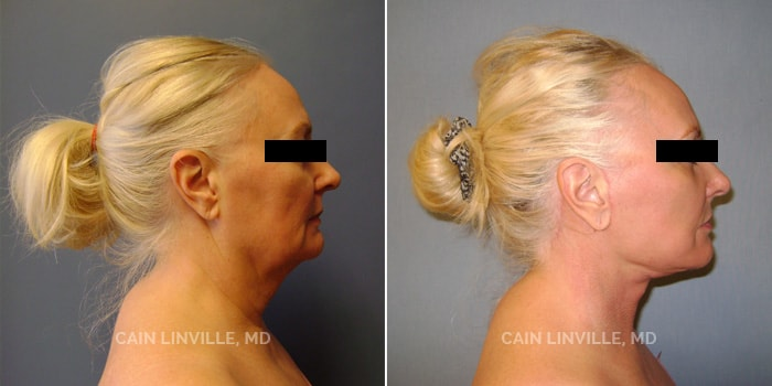 Face and Neck lift Before And After Patient 1E