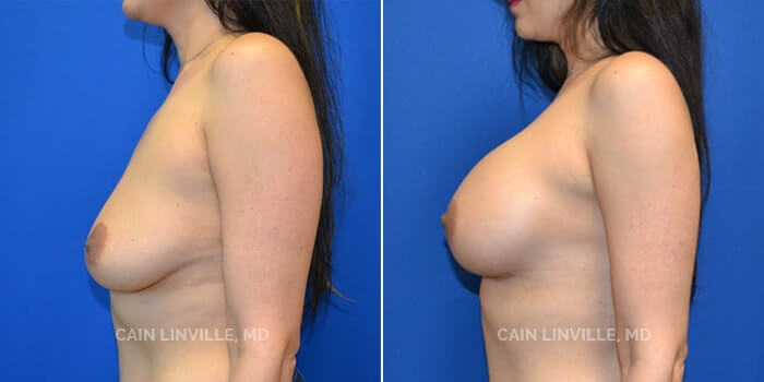 Breast Augmentation Before And After Patient 19E