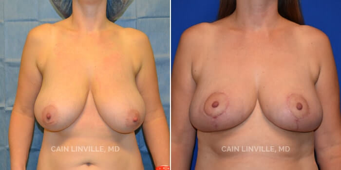 Breast Reduction Before And After Patient 2A