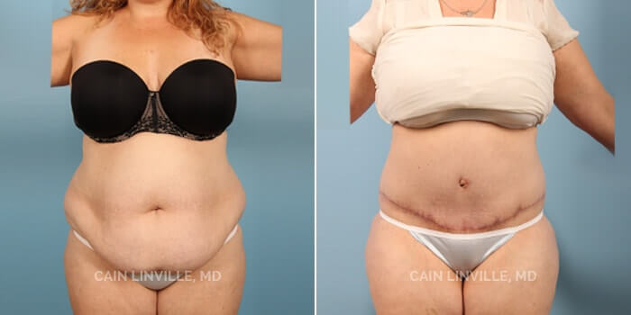 Lipo Tummy Tuck Before And After Patient 4