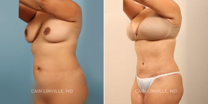 Lipo Tummy Tuck Before And After Patient 2B