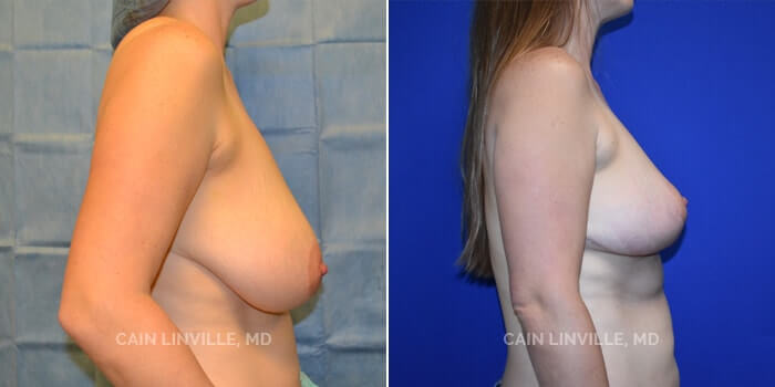 Breast Reduction Before And After Patient 2C