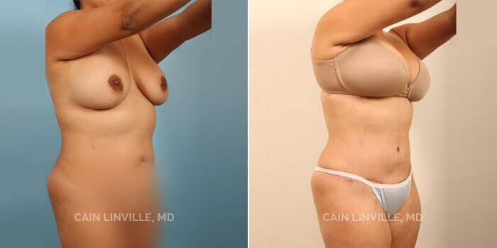Lipo Tummy Tuck Before And After Patient 2D