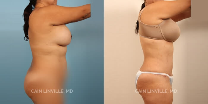 Lipo Tummy Tuck Before And After Patient 2E