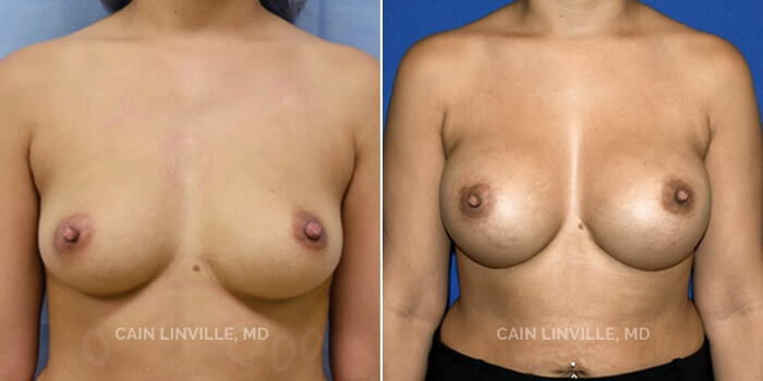 Breast Augmentation Before And After Patient 9A