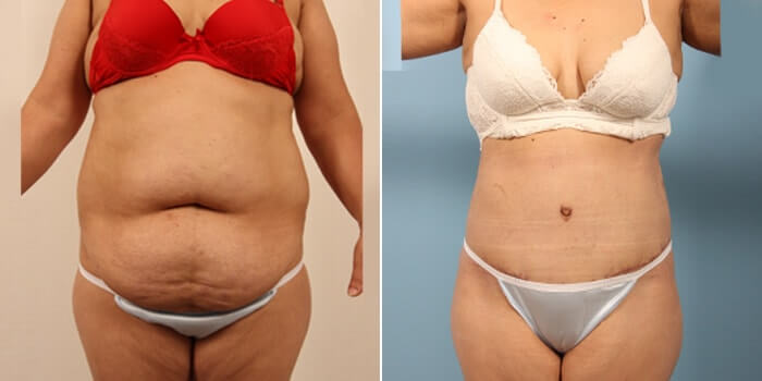 Lipo Tummy Tuck Before And After Patient 3A