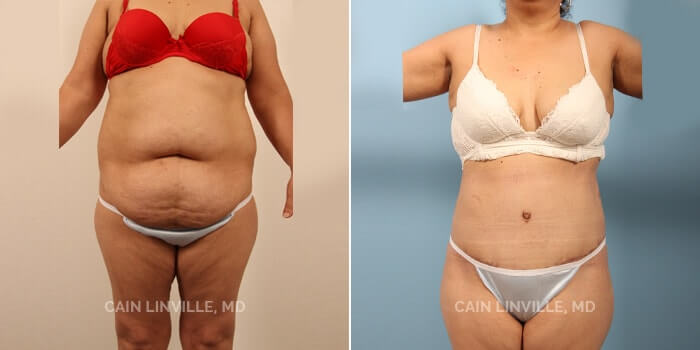 Tummy Tuck Before And After Patient 6A