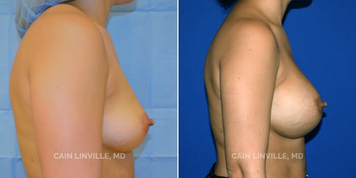 Breast Augmentation Before And After Patient 9B