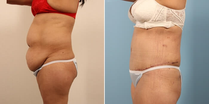 Lipo Tummy Tuck Before And After Patient 3B