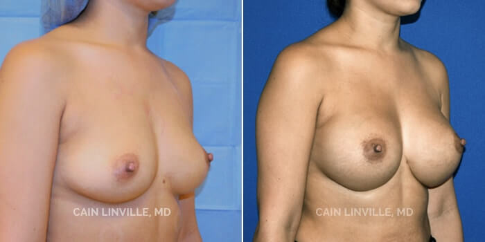 Breast Augmentation Before And After Patient 9C