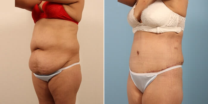 Lipo Tummy Tuck Before And After Patient 3C
