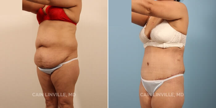 Tummy Tuck Before And After Patient 6C