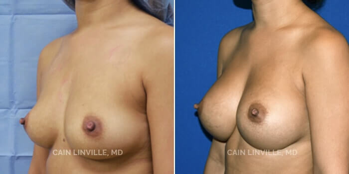 Breast Augmentation Before And After Patient 9D