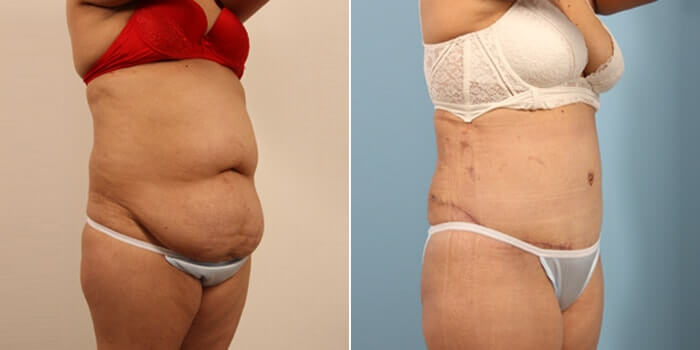 Lipo Tummy Tuck Before And After Patient 3D