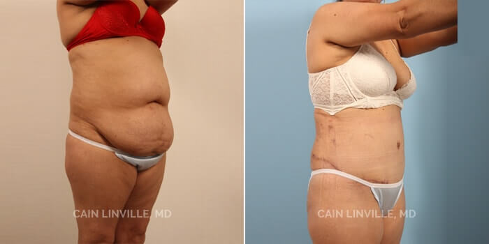 Tummy Tuck Before And After Patient 6D