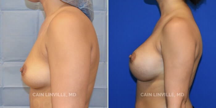 Breast Augmentation Before And After Patient 9E