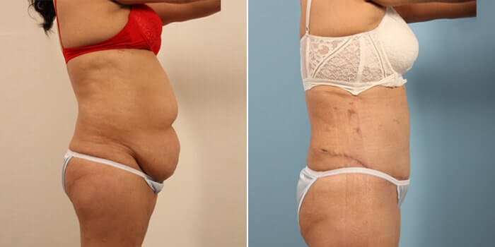 Lipo Tummy Tuck Before And After Patient 3E