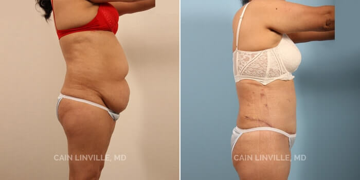Tummy Tuck Before And After Patient 6E