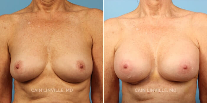 Breast Augmentation Before And After Patient 10A