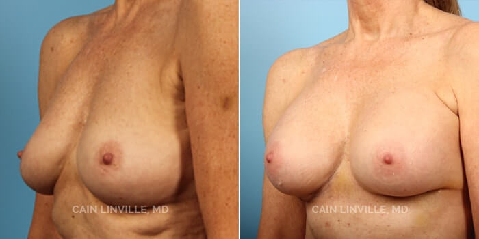 Breast Augmentation Before And After Patient 10B