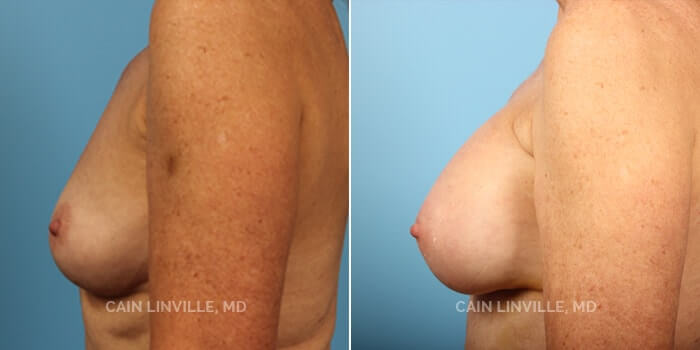 Breast Augmentation Before And After Patient 10C