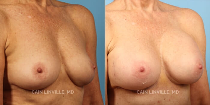Breast Augmentation Before And After Patient 10D