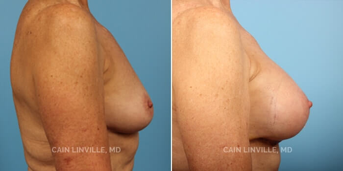 Breast Augmentation Before And After Patient 10E