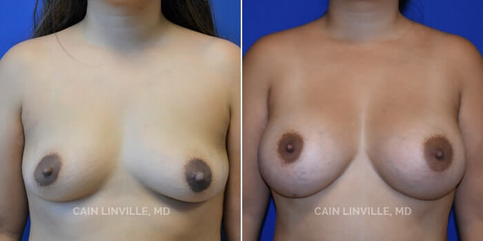 Breast Augmentation Before And After Patient 8A